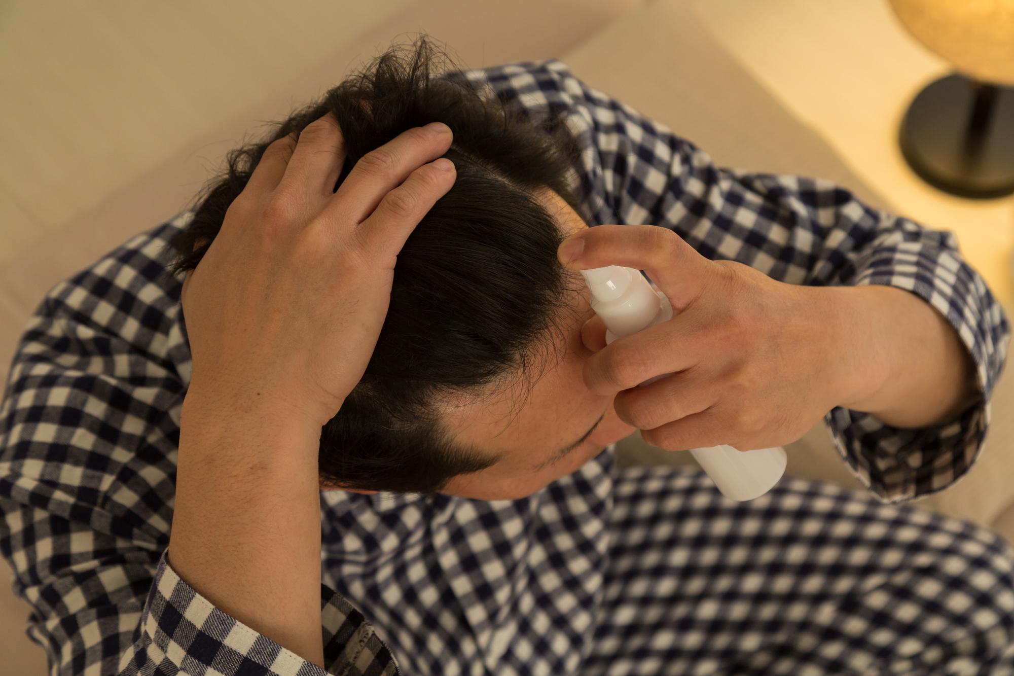 日本で初めてのダイレクトOTC薬「リアップ」の効果は?