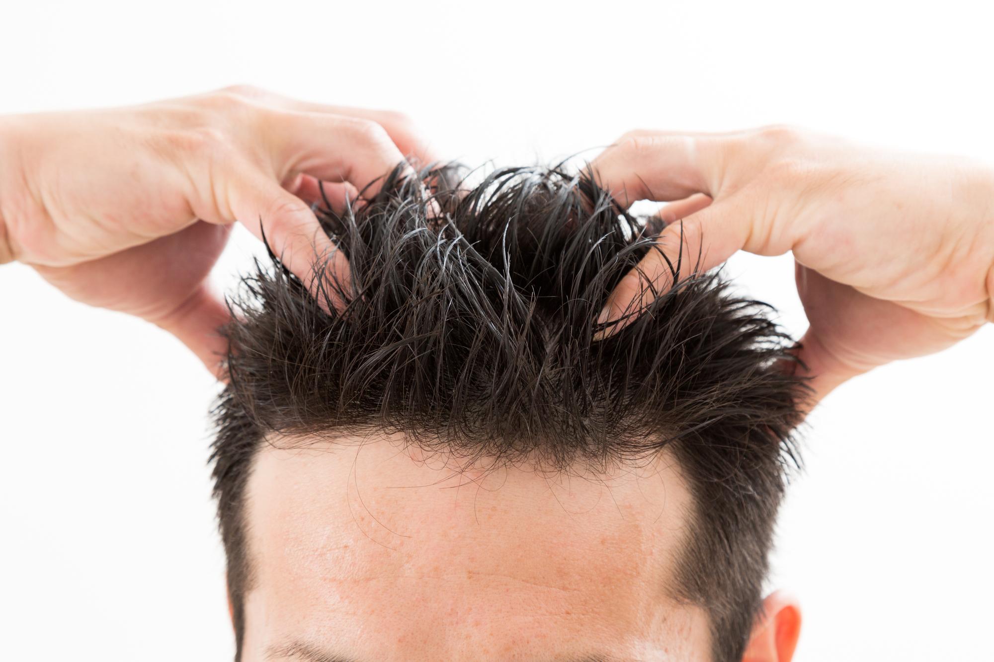 抜け毛を改善したい!効果的な方法ってある?